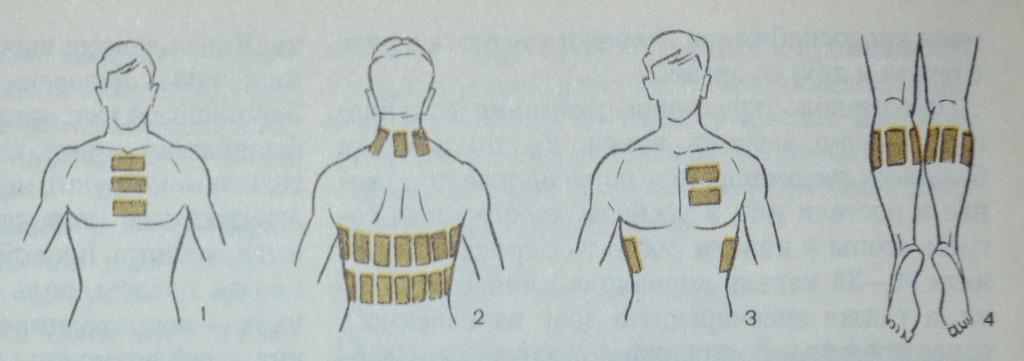 схема лечения воспаления