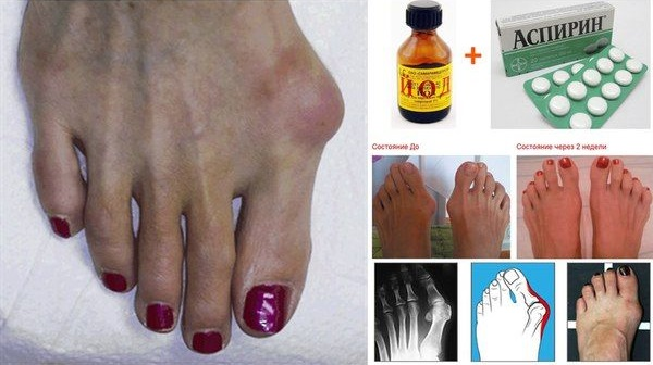 Косточки на ногах - как лечить народными средствами в домашних условиях