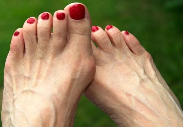 Как избавиться от шишек на ногах