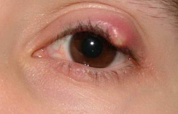 Гной в глазах у ребенка чем лечить