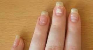 Грибок под ногтями на руках