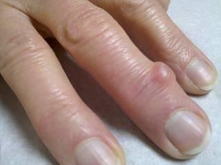Гигрома на пальцах рук