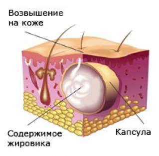 Жировик на спине