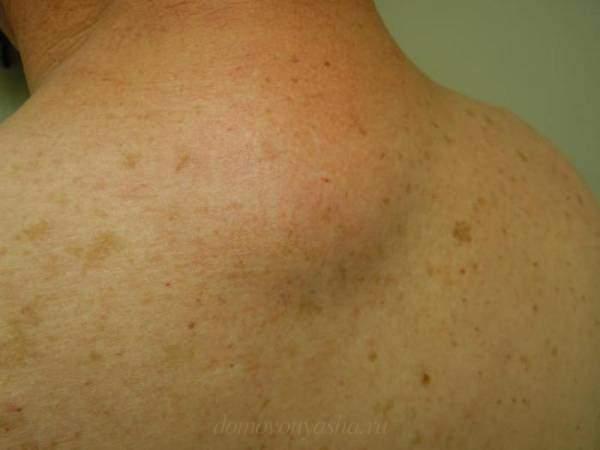 Жировик на спине1