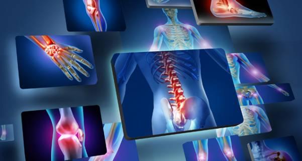 Диета при остеохондрозе