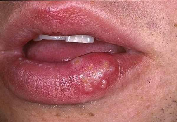 Почему появляется простуда на губах