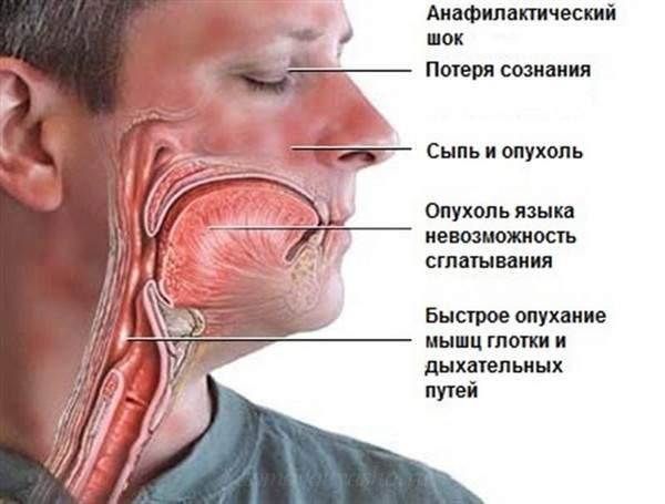 после аллергии пигментация