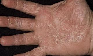 Авитаминоз на руках