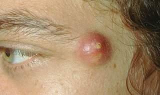 Атерома кожи лица