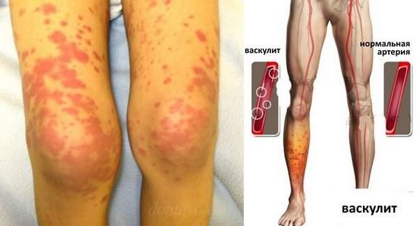 Васкулит симптомы и лечение