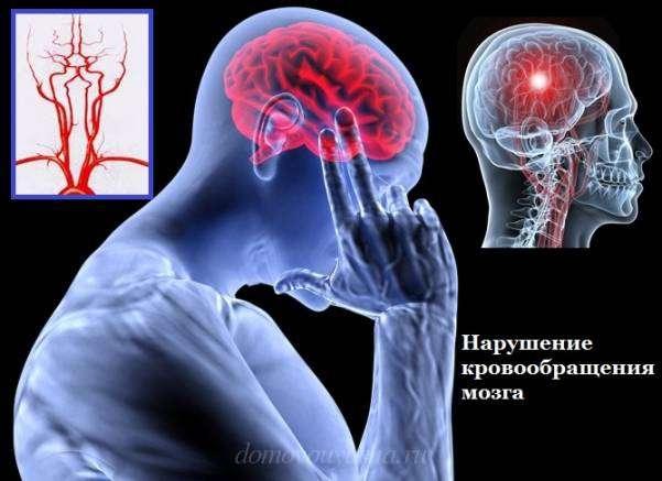 Нарушение кровообращение мозга
