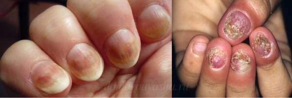 Как выглядит грибок на ногтях рук? Основные проявления