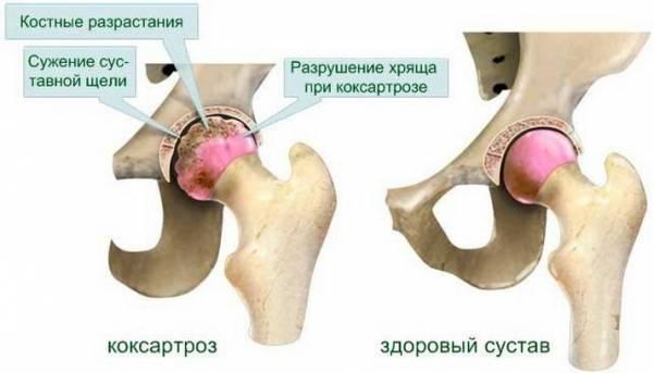 Симптомы заболевания коксартроза