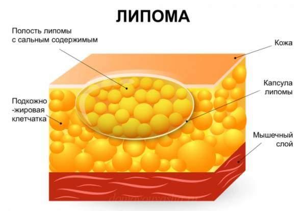 Как удалить жировик на спине