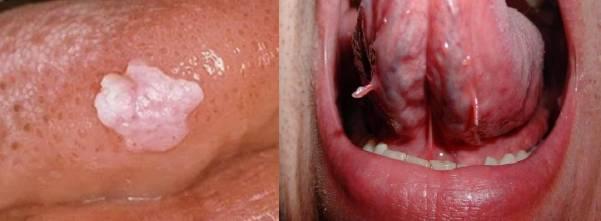 Папиллома на языке лечение