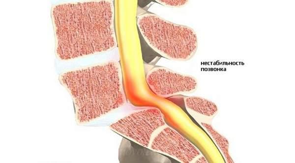 Нарушение кровообращения при остеохондрозе