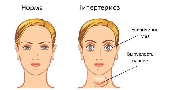 Болезнь Грейвса симптомы