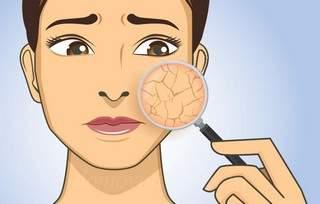 Витамины при сухой коже лица и тела