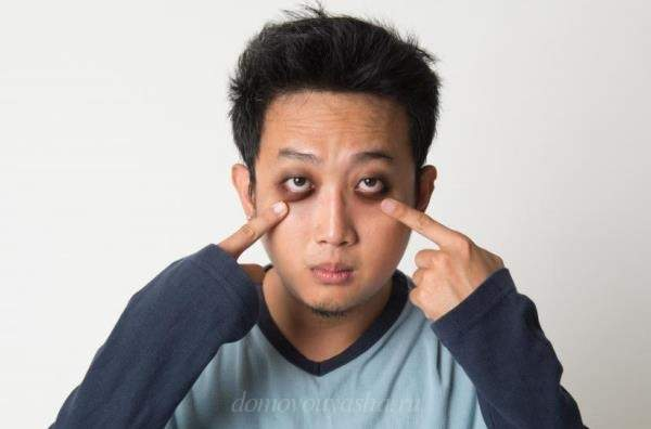 Мешки и синяки под глазами как избавиться