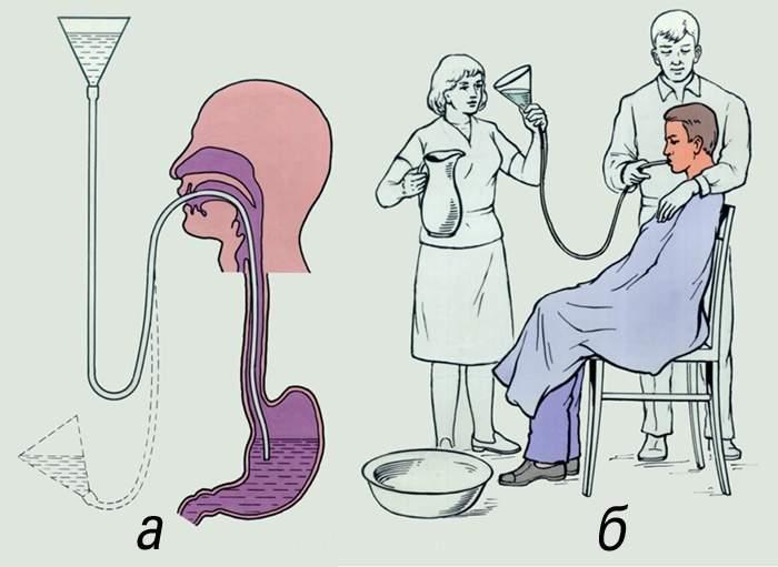 Как правильно промыть желудок