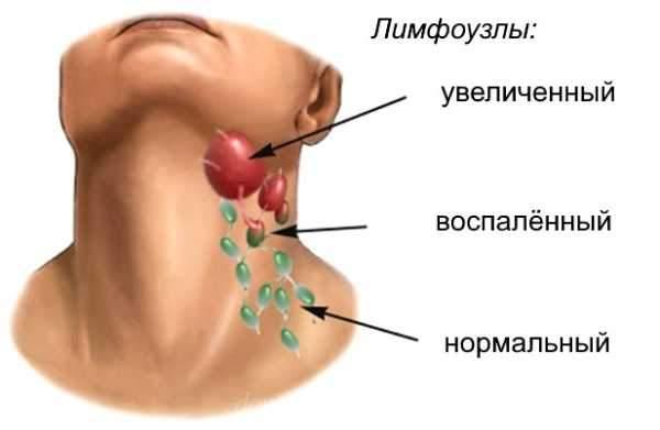 Гнойная ангина у ребенка симптомы и лечение