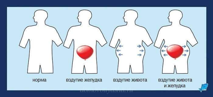 Метеоризм кишечника
