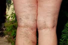 Что такое варикозное расширение вен на ногах