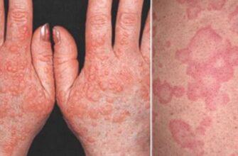 Холодовой дерматит - чем лечить